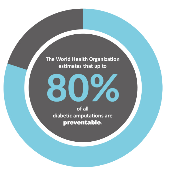 The World Health Organization estimates that up to 80 percent of all diabetic amputations are preventable.